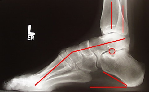 CMT-Lateral-X-ray-Figure-2A_thumb