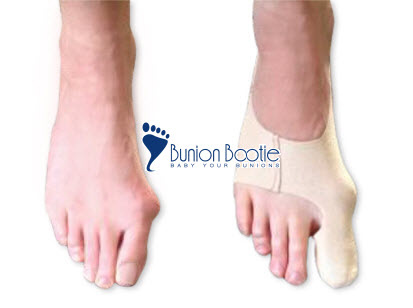 1426198925_Bunion-Bootie-Before-After