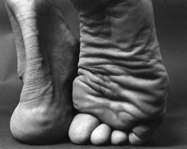 feet-black-and-white-toes-close-up